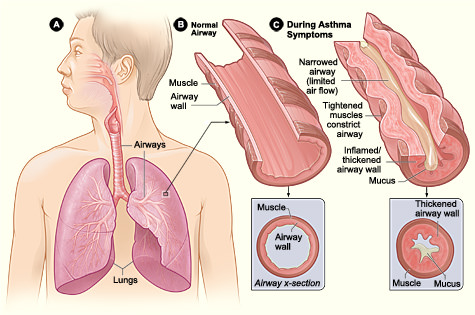 does prednisone cause shortness of breath