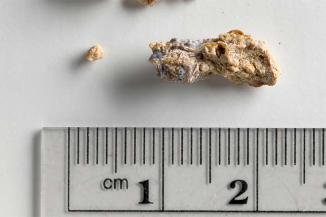 Gallstone Vs Kidney Stone Difference And Comparison Diffen