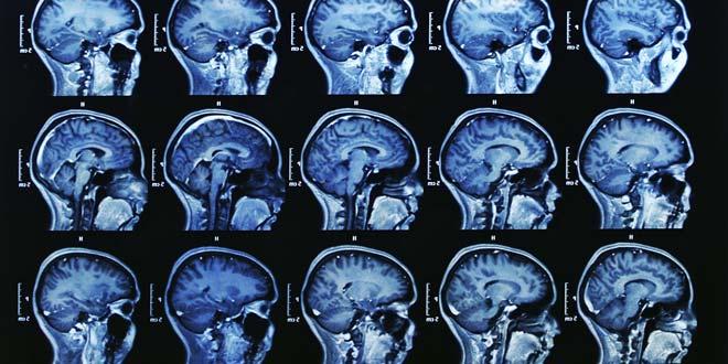 Pin mra mri full body scan brain scan on pinterest