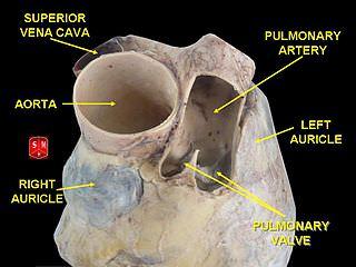 Aorta vs Pulmonary Artery Difference and Comparison Diffen