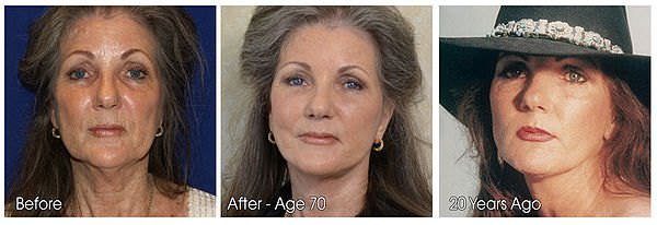 Before and After pictures of a woman who has had a face lift surgery