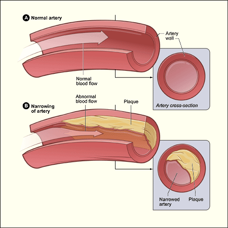 A picture comparing a healthy artery with an artery with atherosclerosis (plaque build-up)
