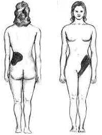 Regiones del cuerpo que sienten dolor como resultado de piedras en el riñón