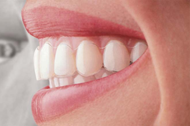 Braces vs Invisalign - Difference and Comparison | Diffen