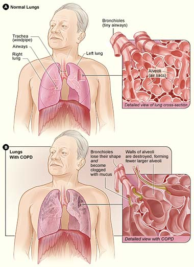 Asthma Vs Copd Difference And Comparison Diffen