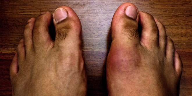 Gout vs Pseudogout - Difference and Comparison | Diffen