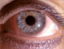 The thin film of transparent contact lens can be seen around the pupil