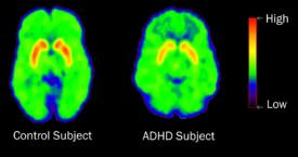 PET scans show that patients with ADHD had lower levels of dopamine transporters in the nucleus accumbens, a part of the brain's reward center, than control subjects.