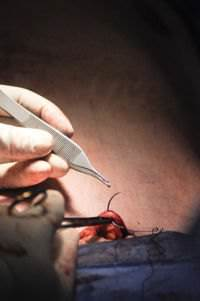 This photo shows a doctor suturing the incision after completing a tummy tuck.