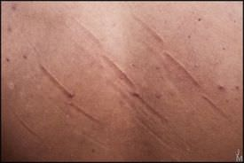Close up of a person's back showing pimples and scratches