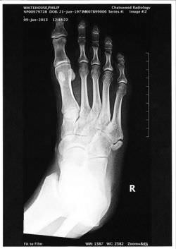 An X-ray of the right foot (uploaded by the patient himself).