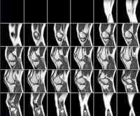 Un MRI de la rodilla izquierda.